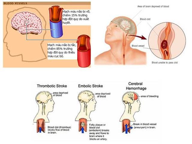 Dấu hiệu của bệnh đột quỵ