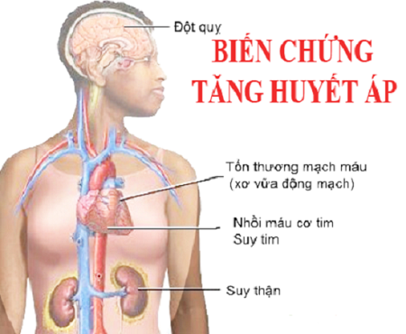tác dụng của nấm linh chi với người cao huyết áp